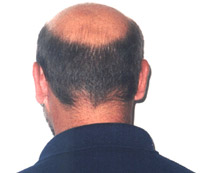 Symptoms and indications: In men, thinning hair on the scalp, a ...