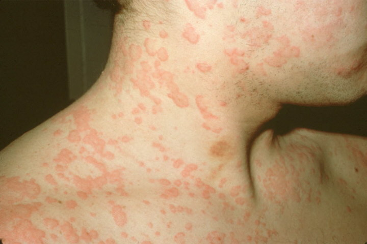 urticaria178 Recent Info On Urticaria Treatment Over The Counter